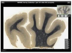 aplicacion para ver el cerebro de einstein en el ipad