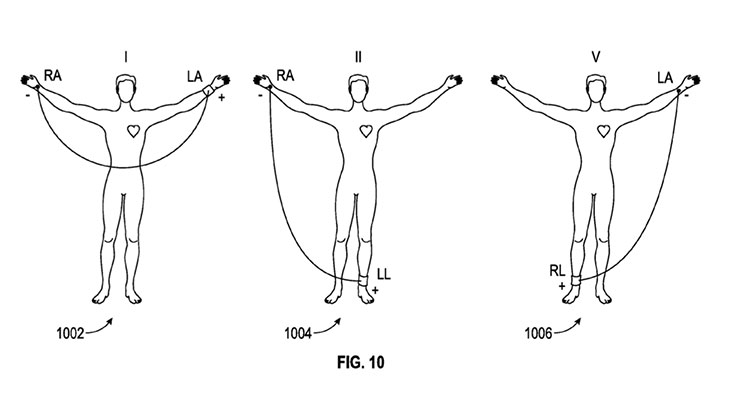 Apple patenta un dispositivo wearable electrocardiográfico