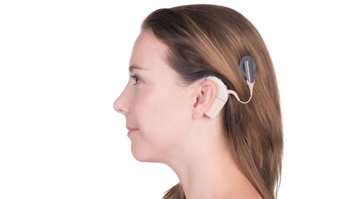 Apple se asocia con Cochlear para lanzar el primer implante auditivo hecho para iPhone